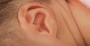 耳垢 キャラメル状 ワキガ